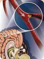 Роковой тромб: причины и симптомы закупорки сосудов