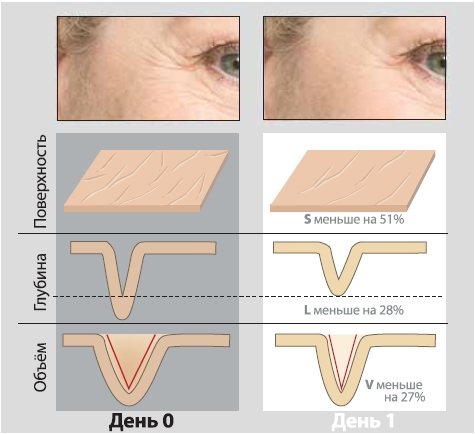 Сокращение поверхности морщин за сутки под воздействием Gatuline ® In-tense