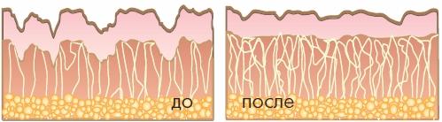 Коллагеновые волокна до и после применения PEPHA®-Tight