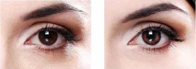 После 8 недель применения 5% Regu®-Age тёмные круги под глазами уменьшились на 35%