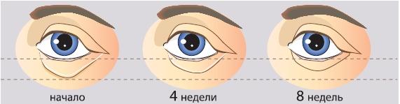 После 8 недель применения 5% Regu®-Age отёчность («мешки» под глазами) уменьшилась на 31%