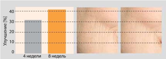 После 8 недель применения 5% Regu®-Age текстура кожи улучшилась на 42% (уменьшились крупные морщины и «сетка»)