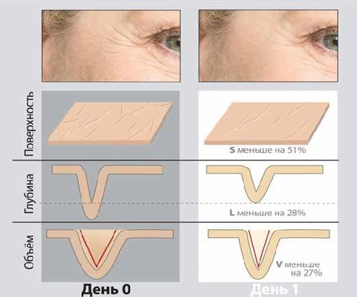 Максимальное сокращение поверхности морщин за сутки под воздействием Gatuline In-tense