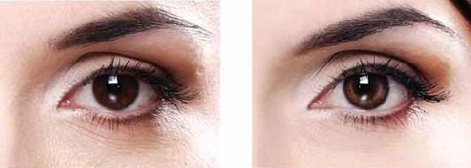 После 8 недель применения 5% Regu-Age тёмные круги под глазами уменьшились на 35%