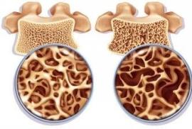 Витамин D укрепляет не только кости, но и мышцы