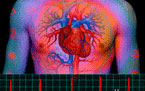 Порок сердца –  еще не порог! Коллоидные фитоформулы при пороках сердца.