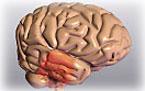 Брейн Бустер: защита от инсульта