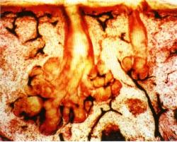 Рис. 7. Сальная железа