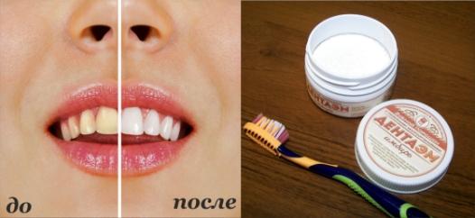 «ДентаЭМ» предотвращает потемнение эмали и появление зубного камня