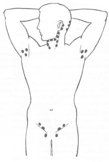 Почему необходимо самообследование лимфатических узлов?