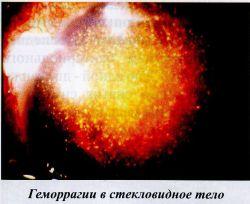 Геморпагии в стекловидное тело