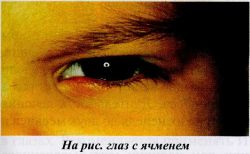 На рис. глаз с ячменем