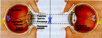 Применение ИЭГД при катаракте
