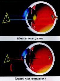 Нормальное зрение/Зрение при катаракте