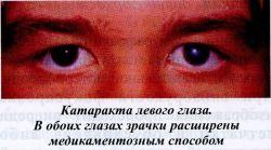 Катаракта левого глаза. В обоих глазах зрачки расширены