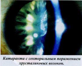Катаракта с секторальным поражением хрусталиковых волокон.
