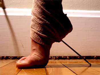 Болезни ног. Профилактика и лечение