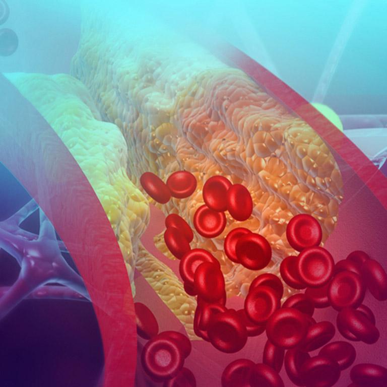 Профилактика и реабилитация атеросклероза с помощью ЛИТОВИТОВ