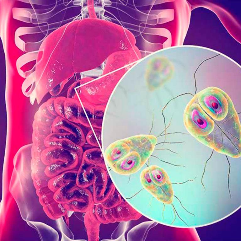 Применение Литовитов и Оптисорба в комплексной терапии лямблиоза