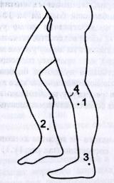 Точки и зоны приложения мячика игольчатого на нижних конечностях при различных заболеваниях и состояниях