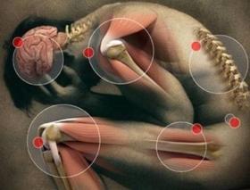 Боли в мышцах, миофасциальная дисфункция и аппликаторы Ляпко
