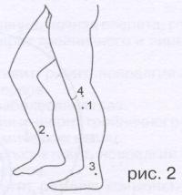 Точки и зоны приложения малых аппликаторов на нижних конечностях при различных заболеваниях и состояниях