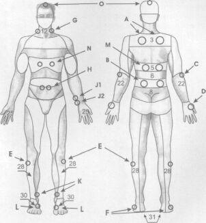 Схемы воздействия аппликатором на зоны организма при различных заболеваниях