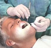 Применение Рициниолов в стоматологии