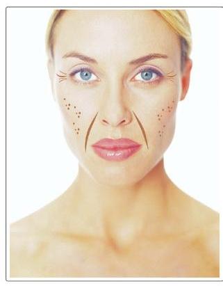 Признаки увядания кожи лица 50-59 лет