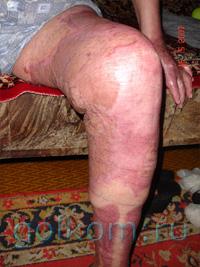 Результаты применения каторовой эмульсии Рициниол в практике хирурга-комбустиолога Д. С. Вегеры, Новосибирск