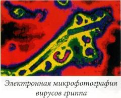 Электронная микрофотография вирусов гриппа