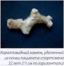 Коралловидный камень, удаленный из почки пациента-спортсмена 32 лет (11 см по горизонтали)
