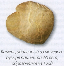 Камень, удаленный из мочевого пузыря пациента 60лет,образовался за 1 год