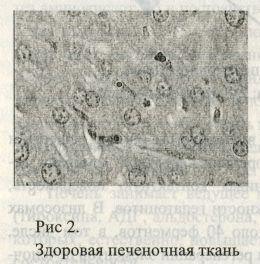 Здоровая печеночная ткань