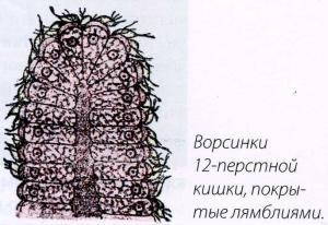 Ворсинки 12-перстной кишки, покрытые лямблиями