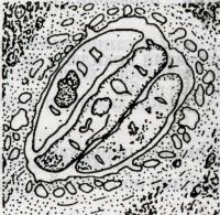 Описторхоз с поражением поджелудочной железы человека. Три описторхиса в протоке