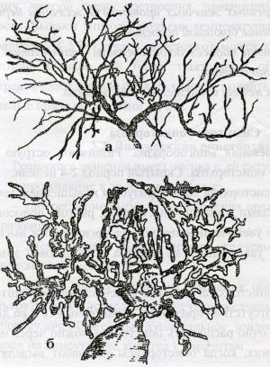 Внутрипеченочные желчные протоки здорового и больного человека