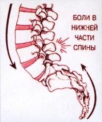 Следствия плоскостопия