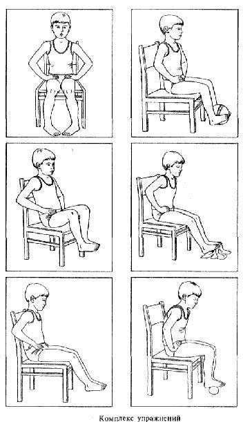 Комплекс упражнений при плоскостопии