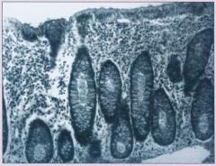 Количественное содержание различных представителей микробиоценоза кишечника у взрослых и детей первого года жизни (КУО/г)
