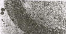 Электронограмма Электронограмма энтероцита эпителия тонкой кишки после гигиенического приема БАД к пище «Литовит»