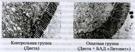 Электронограмма энтероцита тонкой кишки эпителия тонкой кишки