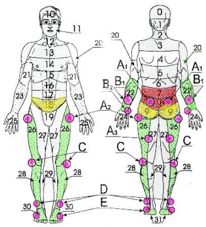 Неврологические симптомы остеохондроза пояснично-крестцового ...