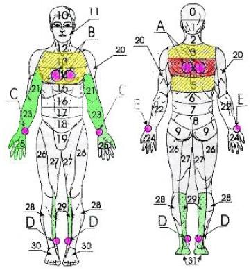 Стенокардия, кардиалгии, остеохондроз (а также радикулиты, миозиты, невралгии) среднего и грудного отделов позвоночника; бронхиты, маститы, слабая лактация у кормящих матерей (рис. 5).
