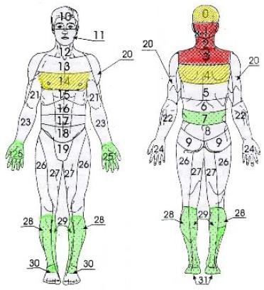 Гипертония (25-30 мин), гипотония (8-10 мин), восстановление после инсультов (рис. 6).