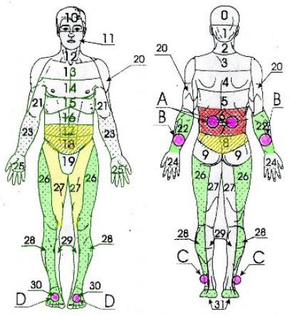 Неврологические симптомы остеохондроза пояснично-грудного отдела позвоночника (а также миозиты, радикулиты), ожирение (рис. 9).