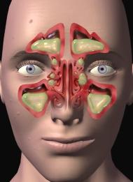 Ароматерапия при фарингите, синусите (гайморите), бронхите, трахеите