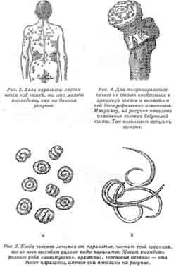 интекс лекарство от паразитов инструкция