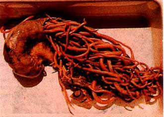 Прямая кишка (полученная при вскрытии) начинённая аскаридами