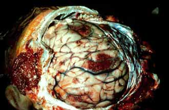 Мозг поражонный аскаридами.